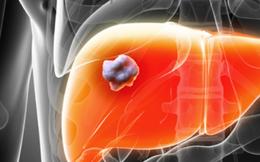 9 dấu hiệu bạn đã bị ung thư giai đoạn đầu