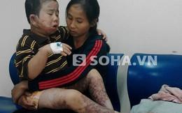 Cha mẹ bất lực nhìn con kêu khóc trong đau đớn, đôi chân teo dần