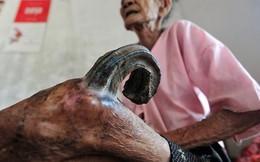 Sừng cong vút mọc ở chân, cụ bà người Nam Định thọ gần 100 tuổi