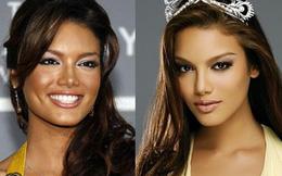 Những Hoa hậu Hoàn Vũ Thế giới từng dính nghi án thẩm mỹ trước khi đăng quang