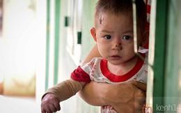 """Xót xa 2 em bé bị bệnh tự """"bốc cháy"""" ở Bình Dương"""