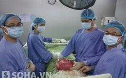 Khối u khổng lồ trong bụng nữ bệnh nhân vừa được lấy ra