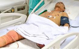 Thanh Hóa: Mìn nổ, một người đàn ông bị cụt chân, hỏng mắt