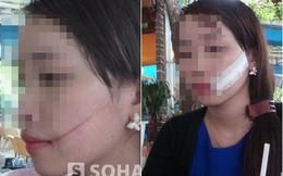 Đi giao hàng, cô gái bị khách nữ dùng dao rạch mặt, giật đồ