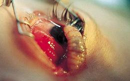 Cận cảnh hình ảnh đáng sợ nhất về ký sinh trùng trên cơ thể người