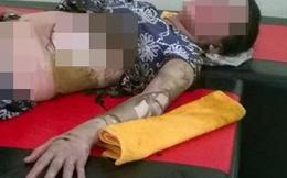 Một phụ nữ bị chồng tưới xăng đốt như ngọn đuốc