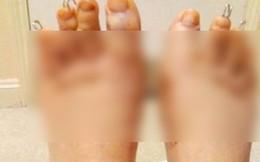 Kinh hãi chuyện cắt bớt ngón chân để… đi dép cho đẹp