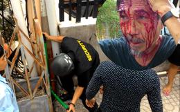 Vụ đổ máu tại chung cư: Chưa hiểu chuyện gì đã bị búa đập vào đầu