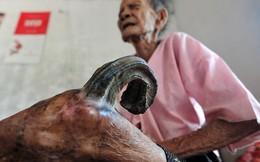 Kỳ lạ cụ bà 97 tuổi mọc sừng dài 20cm ở chân