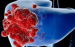 Có dấu hiệu sau rất có thể bạn đã mắc ung thư gan giai đoạn đầu