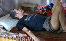 Người tự cắn nát môi tại Hà Nội phải ăn cơm với lòng thiu