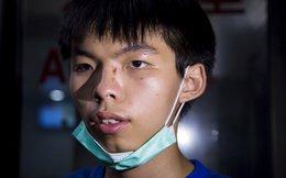 Joshua Wong bị đánh sau khi đi xem phim cùng bạn gái