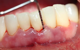 Căn bệnh dễ gây... rụng răng nhiều người mắc mà không để ý
