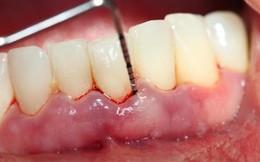 Truy tìm nguyên nhân chảy máu chân răng