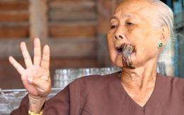 Cụ bà 87 tuổi bị phần thịt dư cả tấc ở miệng