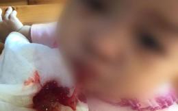 Sự thật về bức ảnh trẻ ói máu tươi sau khi tiêm vắc xin Quinvaxem