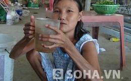"""Cô gái 28 tuổi hóa """"bà lão"""" mỗi bữa ăn 20 ổ bánh mì, 30 lít nước"""