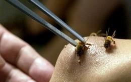 Thiếu nữ suýt tử vong vì bị hơn 100 con ong vò vẽ chích