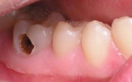 Cách đánh răng của đa số người Việt là sai lầm, nguy hiểm