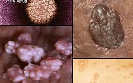 Rợn người hình ảnh chân thực về bệnh lây qua đường tình dục