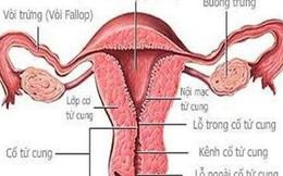 """""""Dị vật"""" lạ trong tử cung mọi phụ nữ khiến ai cũng phải rùng mình"""