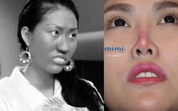 Phi Thanh Vân gánh chịu hậu quả phẫu thuật thẩm mỹ 10 năm trước