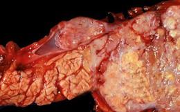 """Ung thư tuyến tụy: Căn bệnh lặng lẽ """"giết người"""" bạn nên đề phòng"""