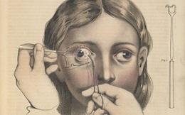 Lạnh gáy với những ca phẫu thuật thời không có thuốc tê