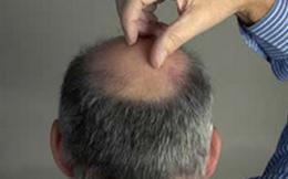 Những bí mật sức khỏe ít biết về đàn ông hói đầu