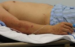 Phát hiện ca viêm não mô cầu đầu tiên tại Hà Nội