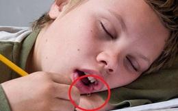 Chảy nước dãi khi ngủ cảnh báo một số bệnh