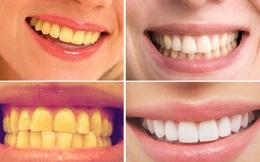 Mỗi tuần 1 lần làm việc này để biến răng ố vàng thành trắng bóng [Vietsub]