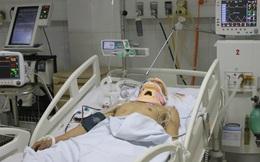 Điều tra vụ nam sinh bị đánh chấn thương sọ não