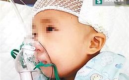 Bé 3 tuổi chấn thương sọ não vì ngã từ xe đẩy siêu thị xuống đất