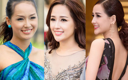"""13 chiếc cằm """"thị phi"""" của showbiz Việt"""
