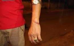 2 người nhà bị kẻ lạ mặt truy sát sau khi cãi vã tại bệnh viện