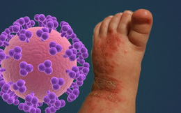 14 tháng tuổi bị nhiễm virus Herpes cả đời do nụ hôn từ người lớn