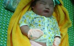 """Bé trai sơ sinh có cân nặng """"khủng"""" 5,1kg ở Quảng Nam"""
