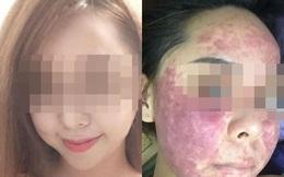 Cô gái chịu hậu quả nặng nề sau khi dùng kem thảo dược
