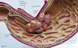 Cách phát hiện ung thư dạ dày giai đoạn sớm ai cũng cần phải biết để tránh căn bệnh này