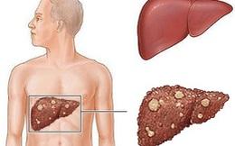 Liên tục gặp dấu hiệu này, phải đi khám ngay kẻo ung thư gan