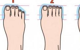 Sở hữu ngón chân như thế này, bạn chắc chắn rất đặc biệt!