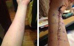 """Chỉ từ một vết bầm nhỏ, cô gái trẻ suýt mất cả cánh tay vì căn bệnh """"lạ"""""""