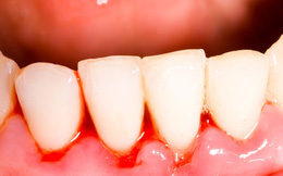 Điều trị chảy máu chân răng bằng những bài thuốc tự nhiên