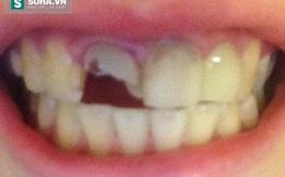 """Người phụ nữ bị đánh rụng răng chỉ vì """"tật xấu"""" khá nhiều người mắc phải"""