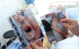 """Cụ bà 76 tuổi bị bàn là nóng """"là phẳng ngực"""": Kẻ thủ ác khiến ta giật mình, căm phẫn"""