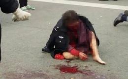 Không mảnh vải che thân, bị con trai đánh chảy máu mặt, người mẹ già bất ngờ nói 1 câu...