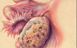 5 loại bệnh dễ bị chẩn đoán nhầm