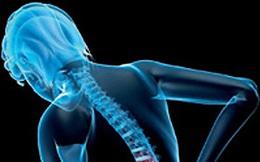 Những nguyên nhân thường gặp gây đau lưng