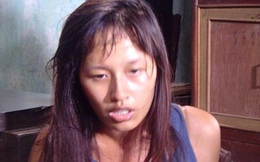 Giật mình với gương mặt tím tái, bầm dập của sao Việt